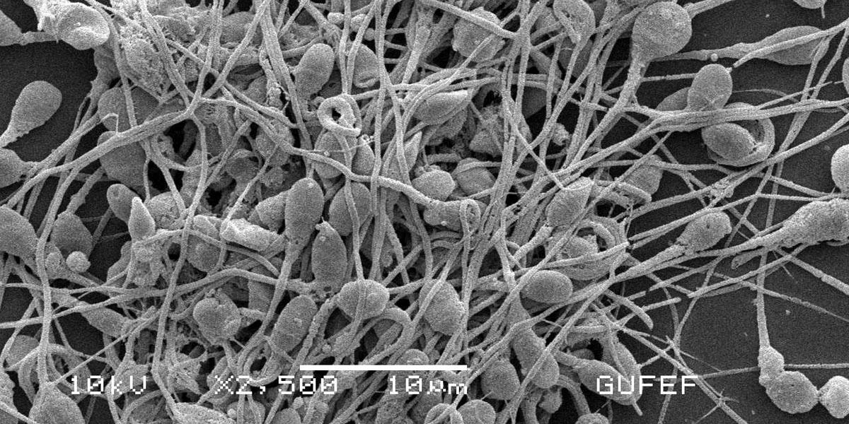 Human spermatozoa
